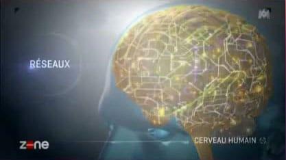 """Le Cerveau : """"L'Accident Vasculaire Cérébral"""" à ne pas confondre avec la pathologie d'Alzheimer."""